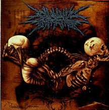 "Chronic Infection - ""Paradoxical Explosion"""